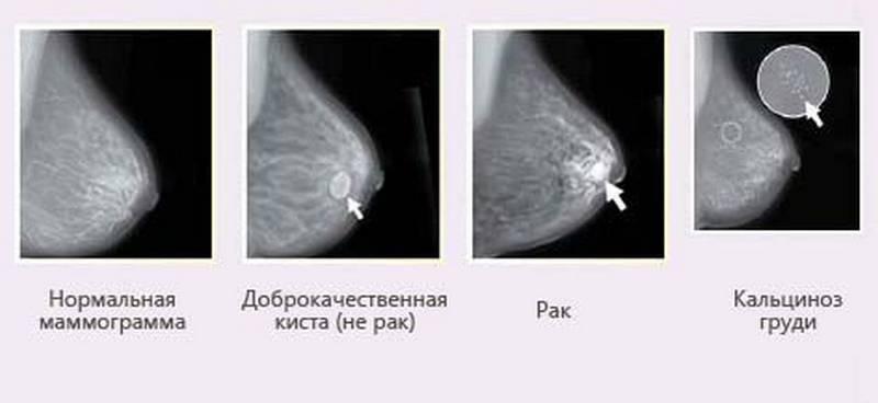 заключение маммографии