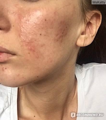 Демодекоз на лице, лечение препаратами