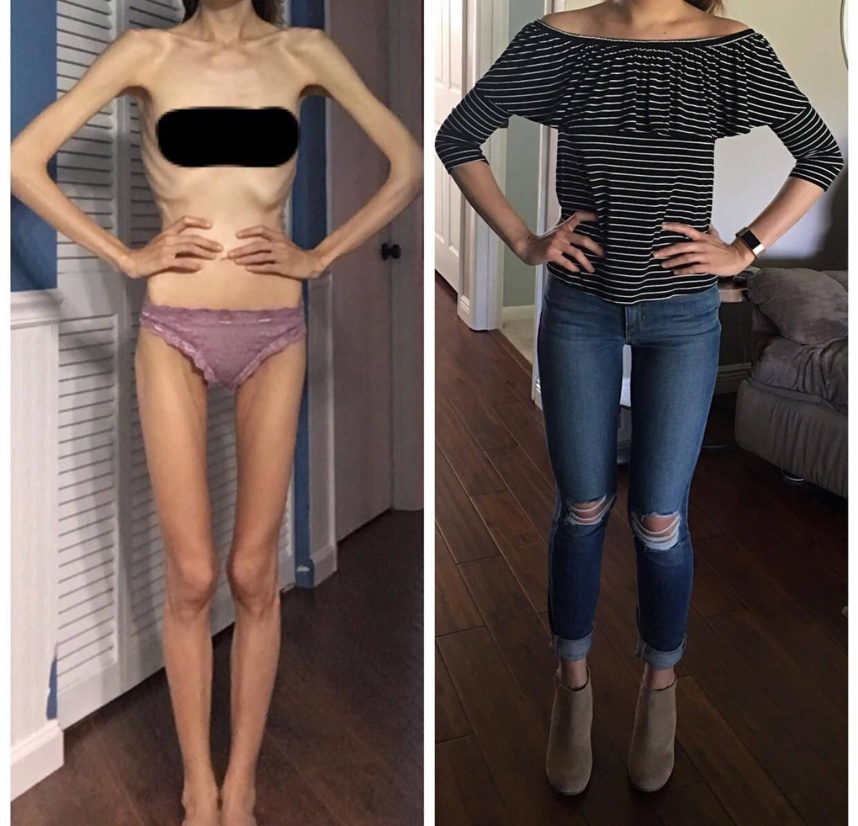 начальная стадия анорексии симптомы
