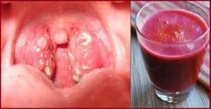 Как избавиться от гнойных пробок в горле, что можно и нельзя делать