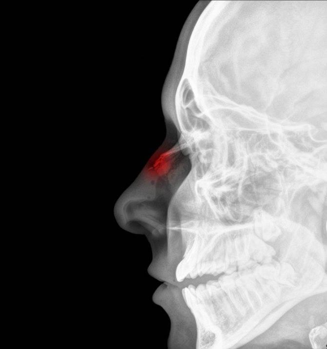симптомы сломанного носа