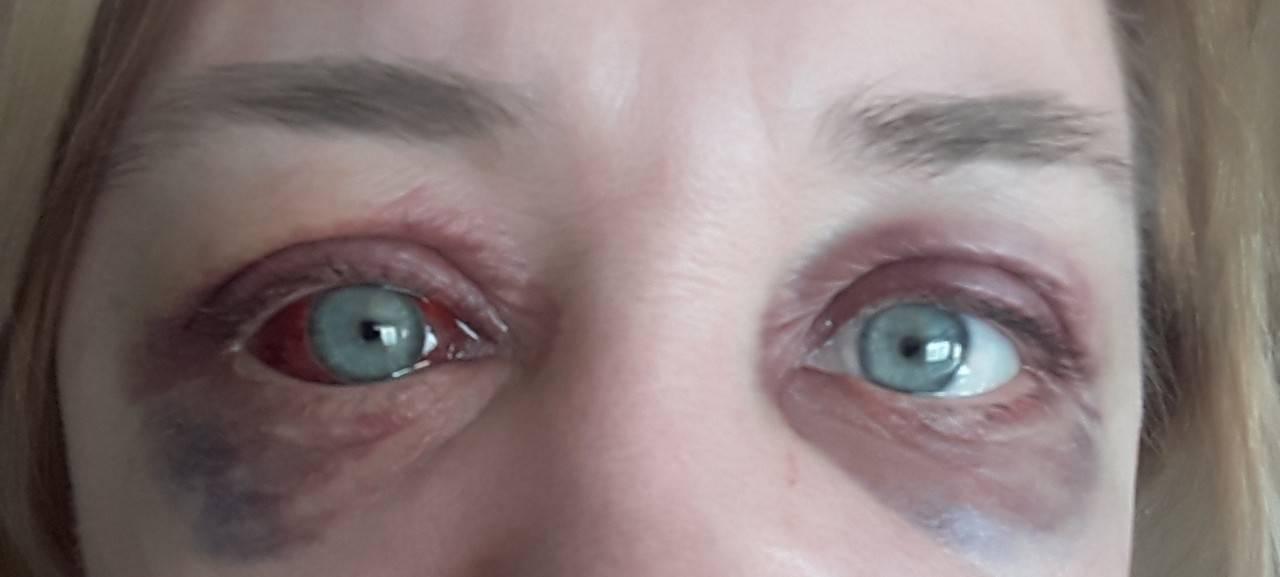 Почему краснеют глаза после принятия душа. почему краснеют глаза после душа и бани: болезнь или аллергическая реакция? краснеют глаза после ванны