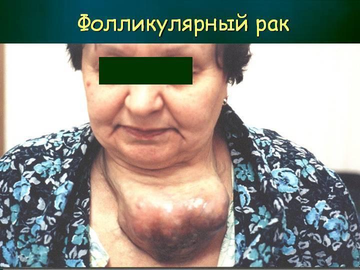 злокачественная опухоль щитовидной железы сколько живут