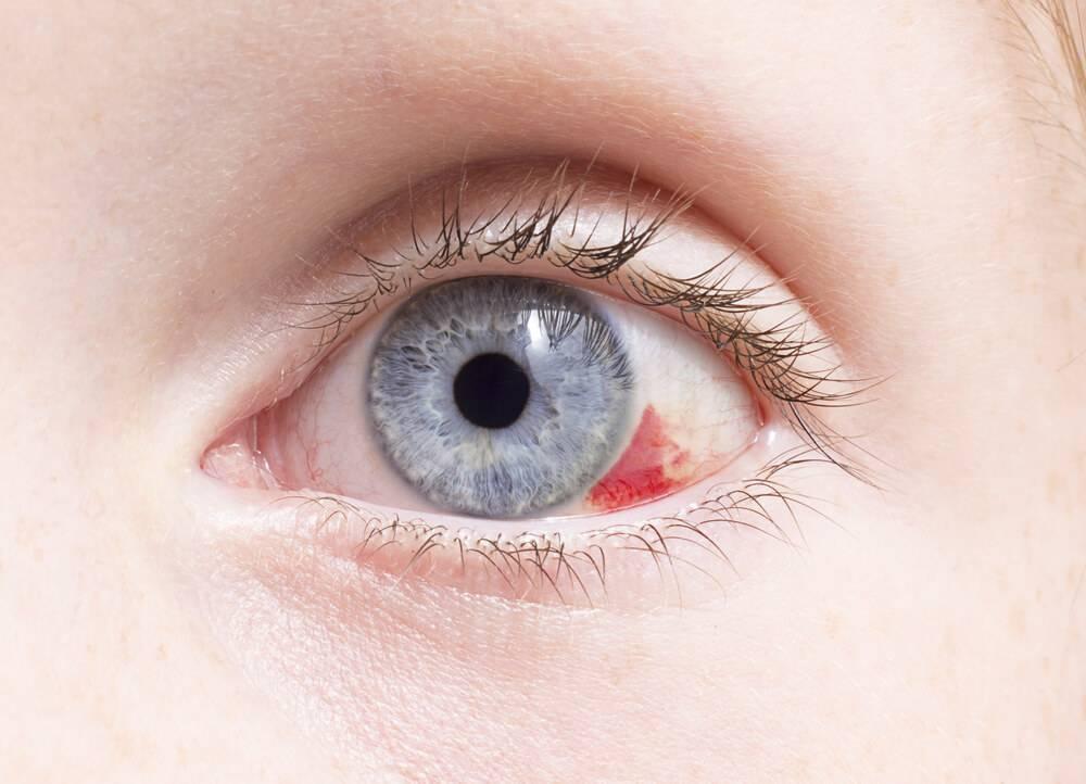 У вас лопнул сосуд в глазу? что делать в домашних условиях?
