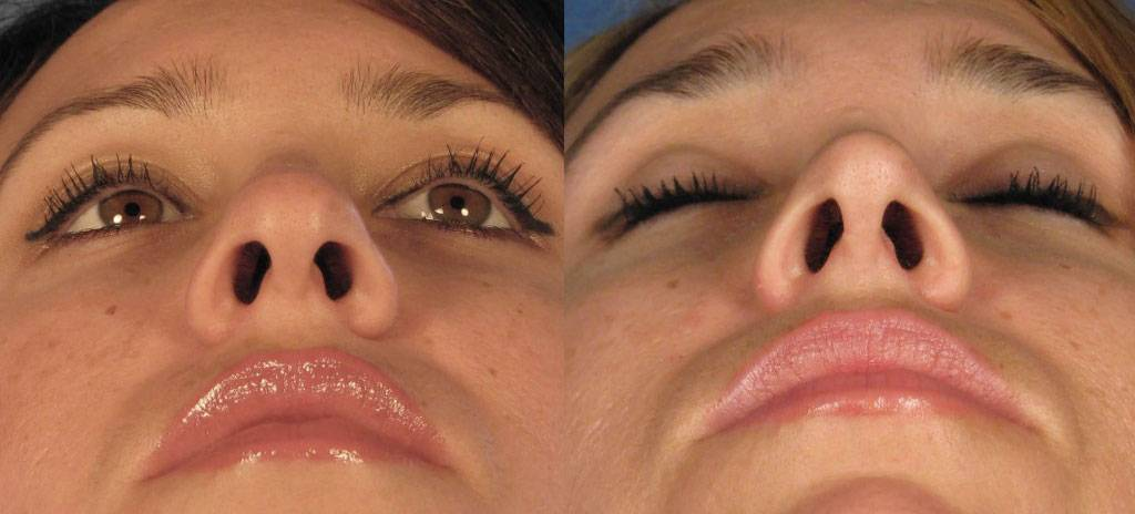 крыло носа