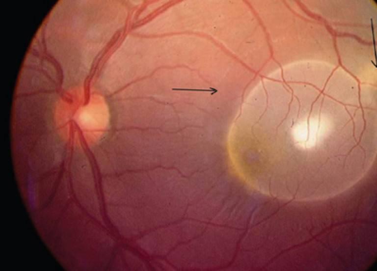 Цистицеркоз глаз: симптомы, признаки и лечение
