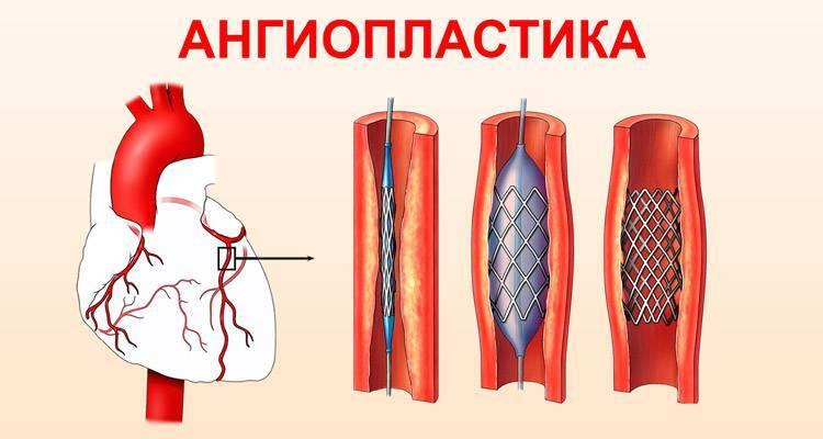 Ангиопластика сосудов нижних конечностей цена