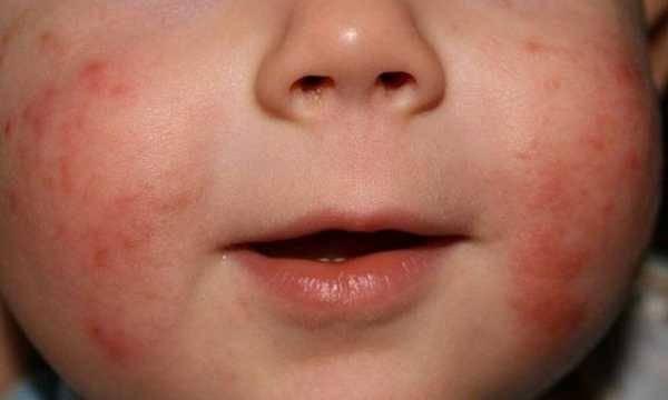 Дерматит у ребенка. фото, симптомы и лечение контактный, аллергический, перианальный, пелёночный, атопический