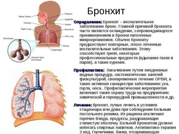 Трахеит при беременности: что это такое, причины и симптомы, диагностика и лечение, опасность, профилактика