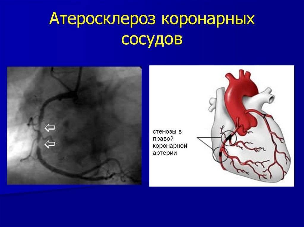 Чем опасно атеросклеротическое поражение коронарных артерий