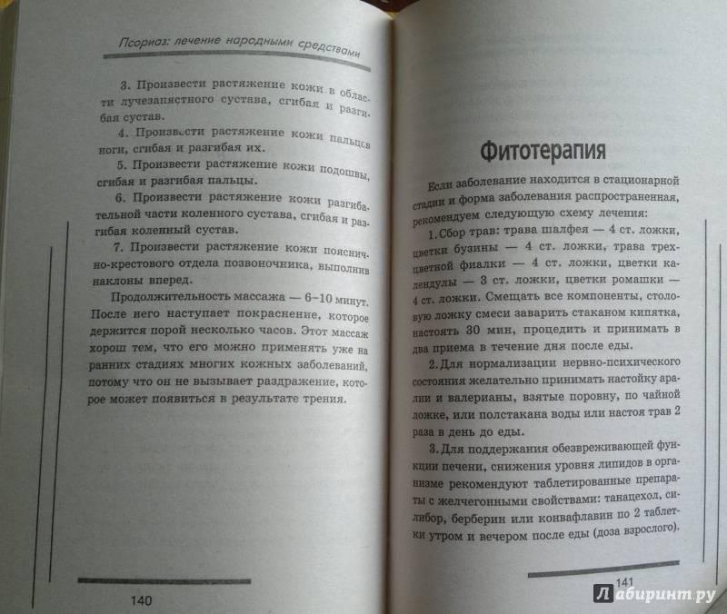 Заговор от псориаза, нетрадиционные методы и психологический аспект в лечении