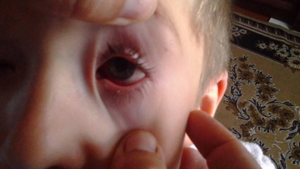 красная точка на глазном яблоке