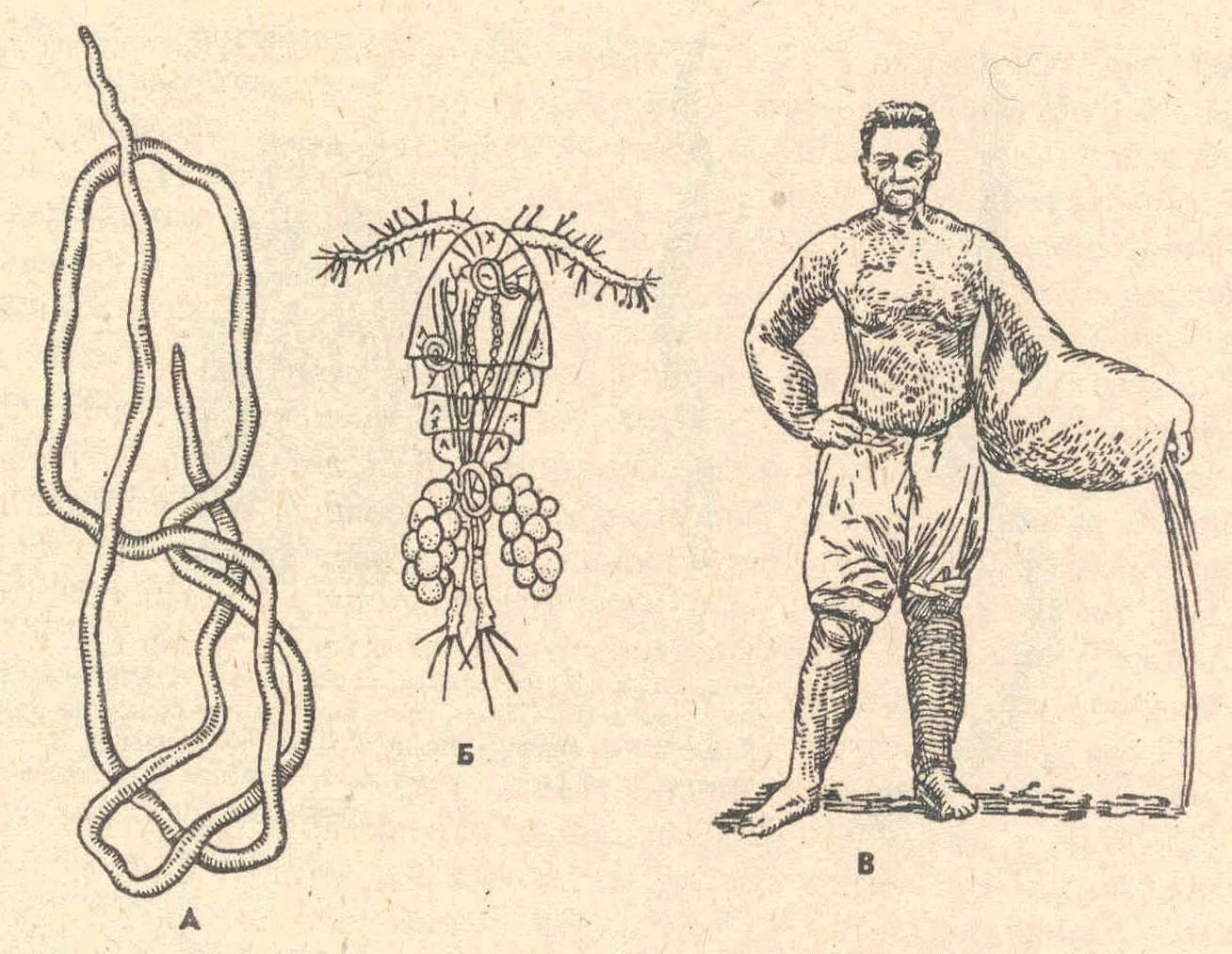 Круглый червь ришта. жизненный цикл червя ришта, симптоматика и лечение дракункулеза