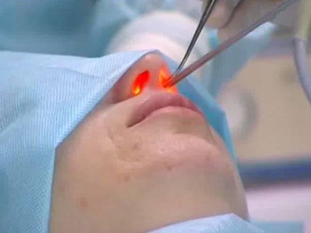 Кровь из носа: причины и факторы риска, виды, первая помощь, методы лечения и предупреждения