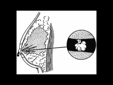 внутрипротоковая папиллома молочной железы операция