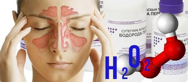 Перекись водорода при лечении уха, горла, носа: отзывы, форум | метки: насморк, как, промывать, ребенок, капать