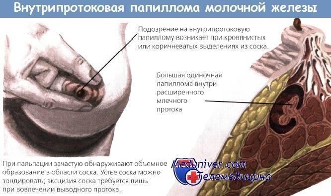 папиллома протока молочной железы