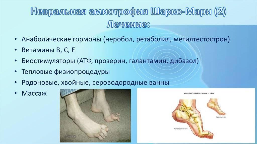 Невральная амиотрофия шарко–мари–тута - описание болезни