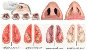 Особенности развития катарального ринита