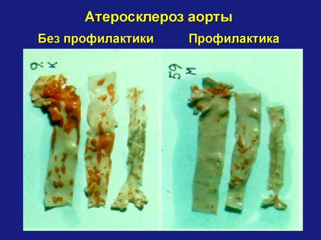 атеросклероз аорты симптомы и лечение