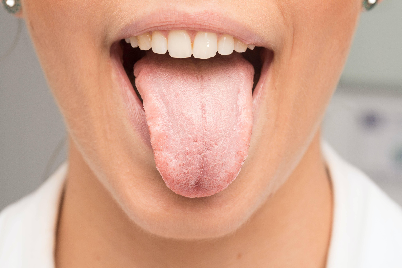 хламидии в горле