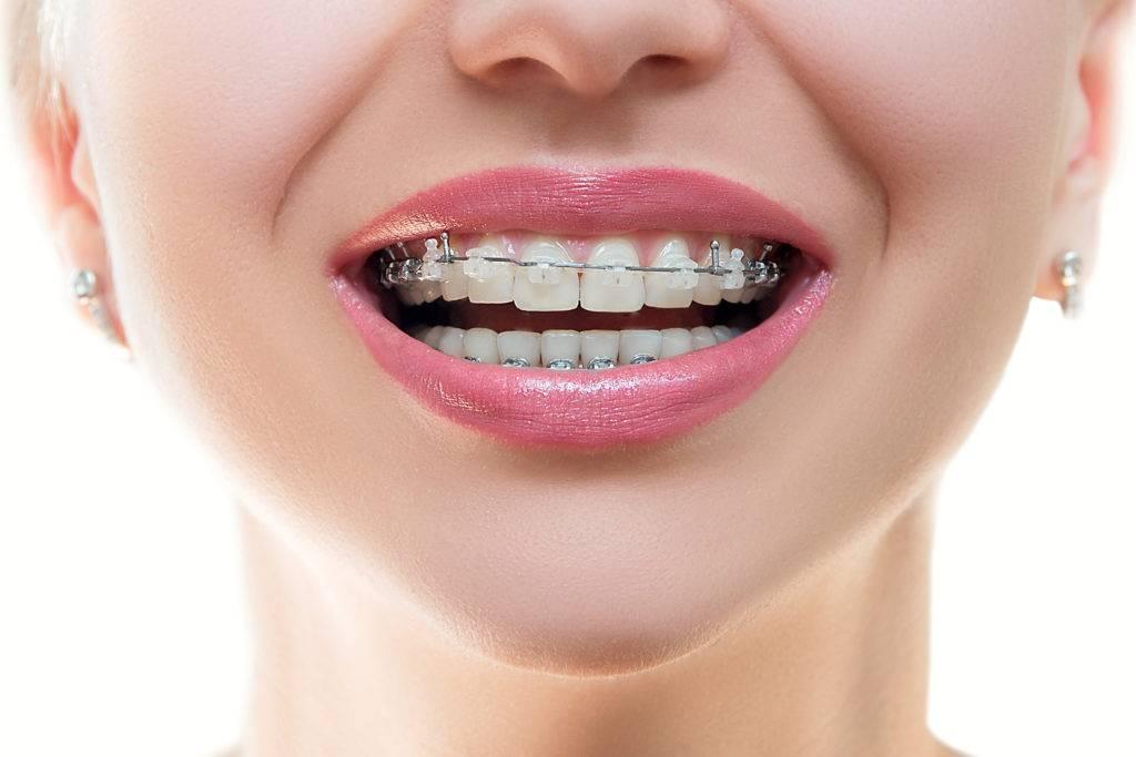 Сапфировые брекеты – цена и установка сапфировой брекет системы в москве | сеть стоматологических клиник «президент»