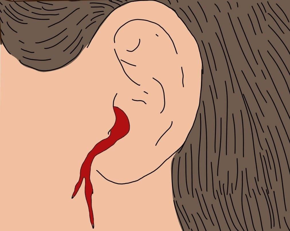 кровь с уха
