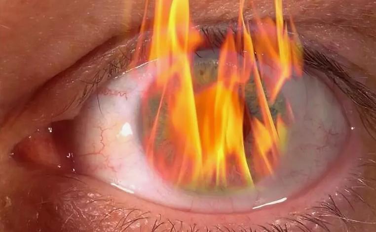 Сопутствующие симптомы и диагностика ожога роговицы глаза