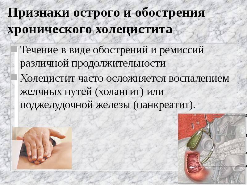лечение при холецистите в период обострения