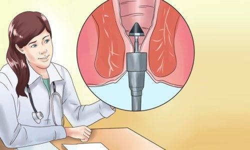 дезартеризация геморроидальных узлов с лифтингом