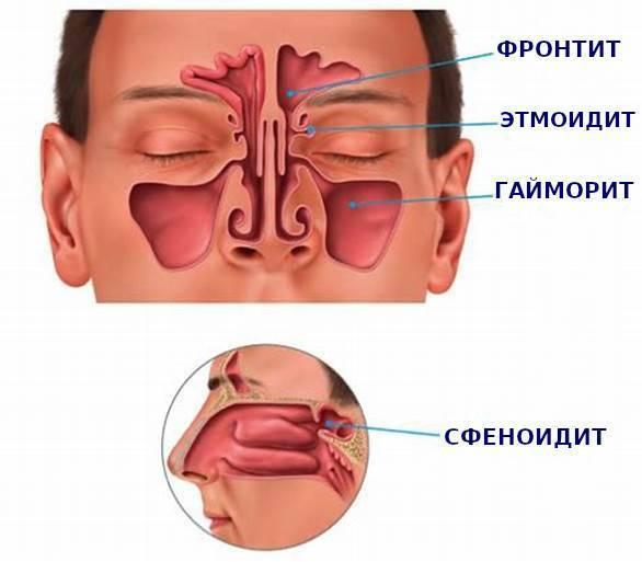 Баня и гайморит можно ли париться в бане при гайморите кому противопоказано лечение гайморита в бане - ухогорлонос
