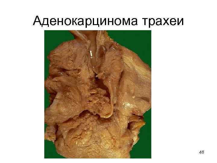 сколько живут с раком трахеи