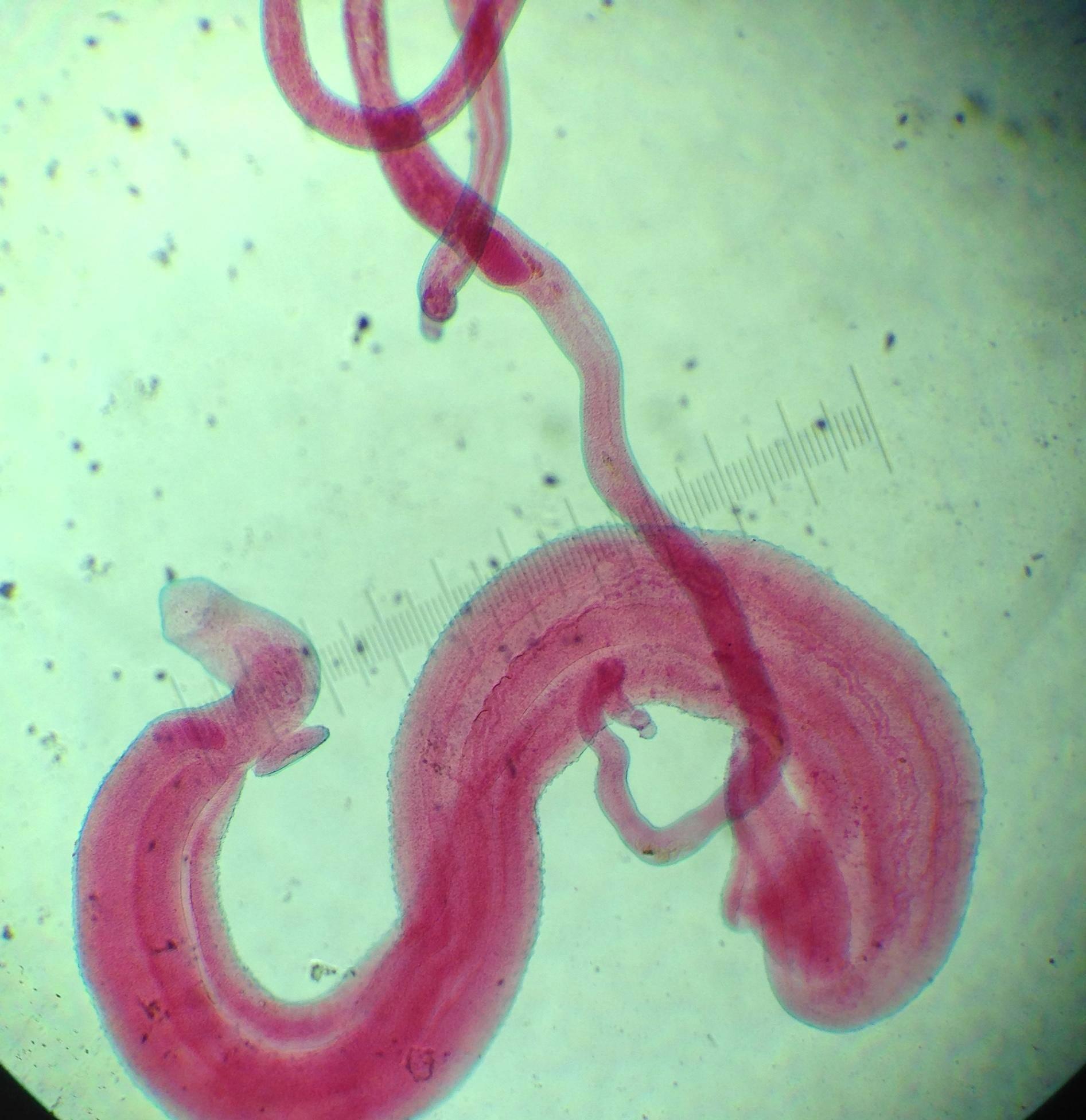 Мочеполовой шистосомоз - симптомы болезни, профилактика и лечение мочеполового шистосомоза, причины заболевания и его диагностика на eurolab