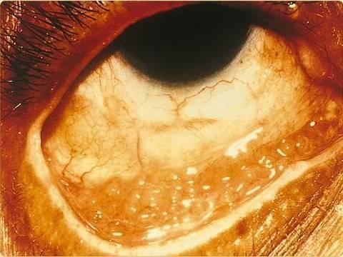 Хламидийный конъюнктивит (офтальмохламидиоз)