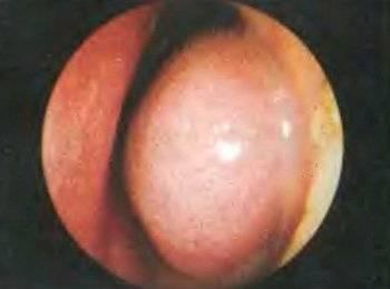 Как лечить синехии и атрезии в полости носа: операция или народные средства
