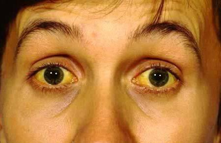 Последствия желтухи у мужчин. сколько дней лечится желтуха у взрослых