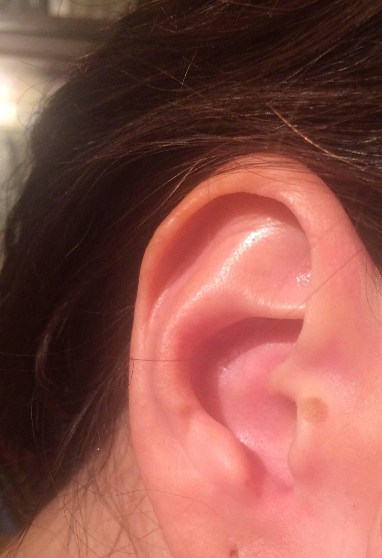 Псориаз в ушах – как распознать и чем вылечить ?