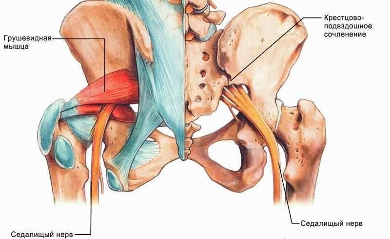 Невралгия седалищного нерва: симптомы, диагностика и методы лечения | все о суставах и связках
