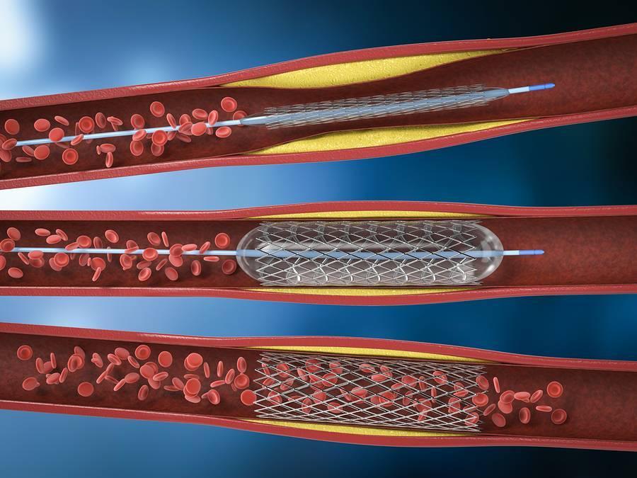Коронарная баллонная ангиопластика, ангиопластика со стенированием