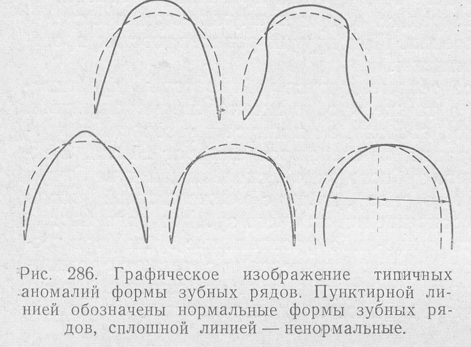 Лицевая дуга в ортодонтии