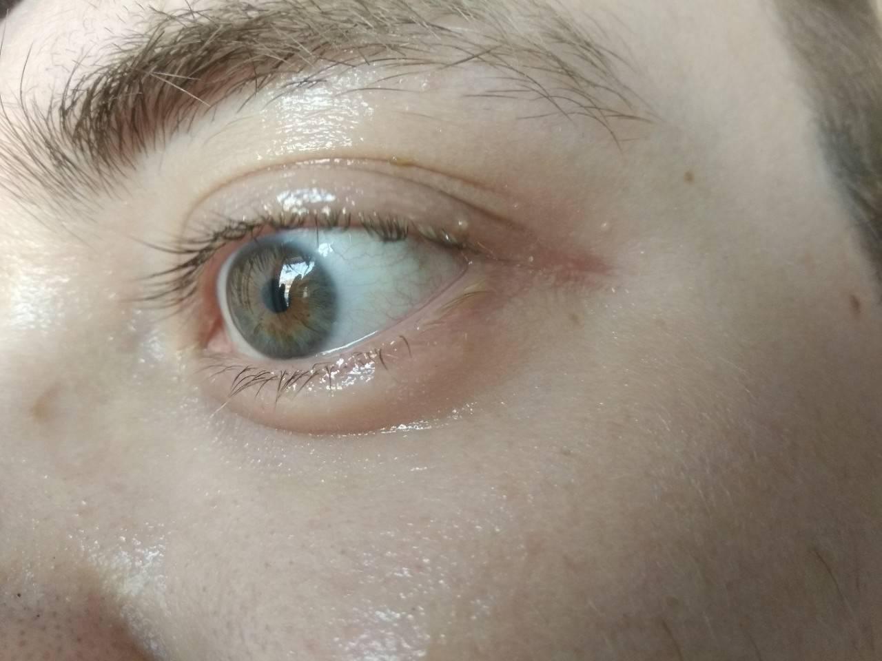 Покраснение глаз - о каких патологиях сигнализирует данный симптом