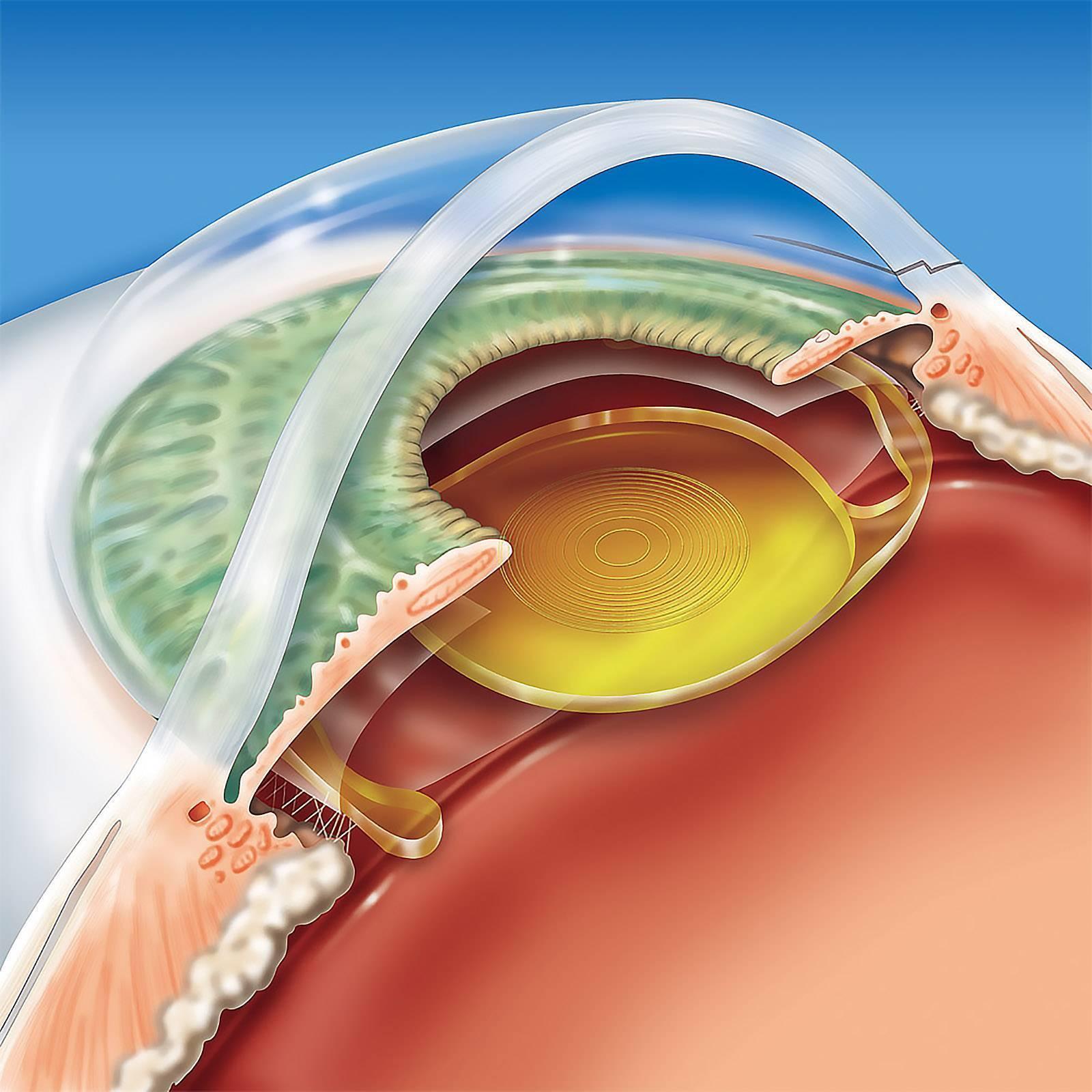 Замена хрусталика глаза. операция по замене хрусталика глаза в клинике им. федорова