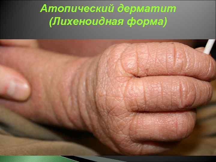 Вирусный дерматит: симптоматика, фото, терапия, прогнозы