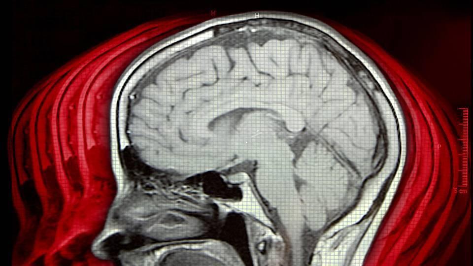 Энцефалопатия: формы, симптомы, лечение, диагностика