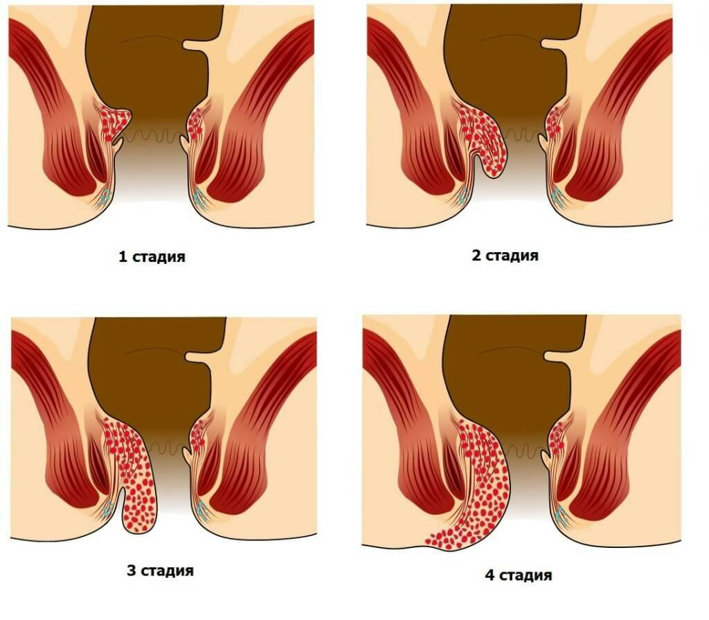 Наружный геморроидальный узел