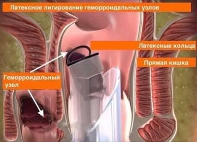 Лигирование геморроидальных узлов механическое и вакуумное