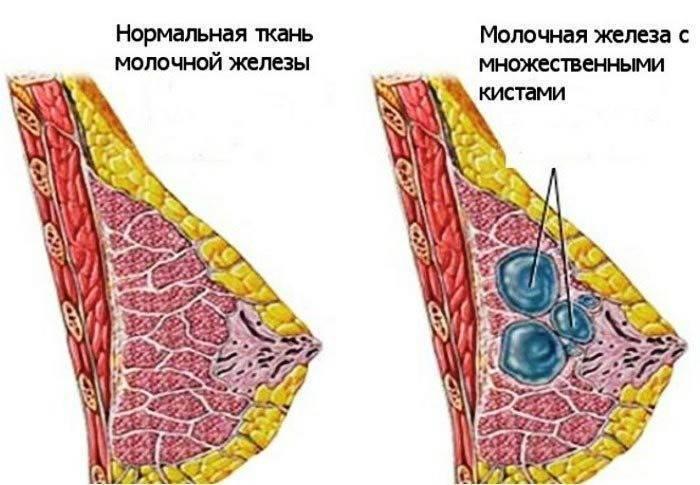 Можно ли кормить грудью при мастопатии?