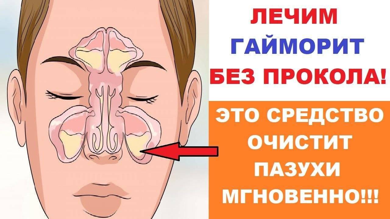 лечение хронического гайморита народными средствами самые эффективные