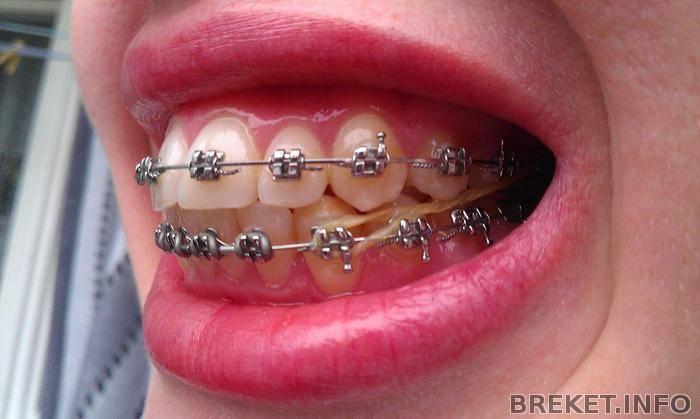 нужно ли удалять зубы при установке брекетов