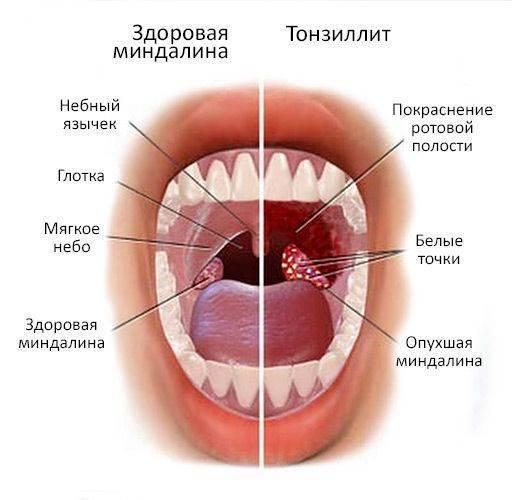 Чем отличается ангина от тонзиллита